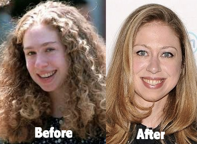 Chelsea-Clinton-Plastic-Surgery-Before-and-After-Photo