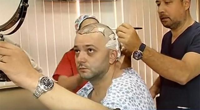 mihai-morar-implant-de-par-4