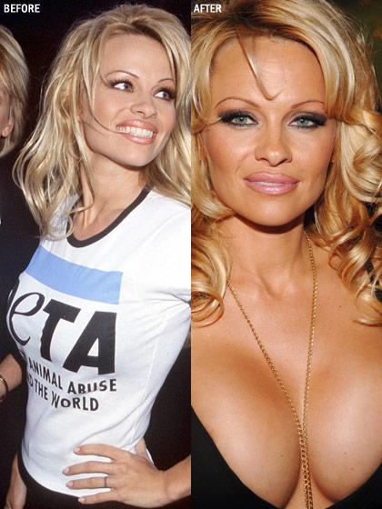 plastic-surgery-pamela-anderson