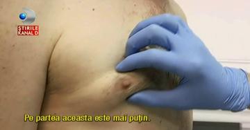 Din ce in ce mai multi barbati isi opereaza sanii! Cat costa o astfel de interventie si ce presupune ea (VIDEO)