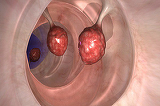 Medicii sunt socati! Acest remediu ucide 93% dintre celulele de cancer la colon in doar doua zile!