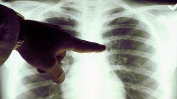 Care sunt semnele care anunta tuberculoza? Nu le ignora