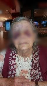 Imagini cu un puternic impact emotional! O batranica a fost batuta crunt de ginerele ei. Femeia este desfigurata