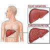 Care sunt simptomele cirozei hepatice, boala care ucide anual 10.000 de romani