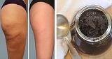Pasta din două ingrediente care şterge celulita pe picioare şi posterior! Femeile din Brazilia îl folosesc şi este marele lor secret!