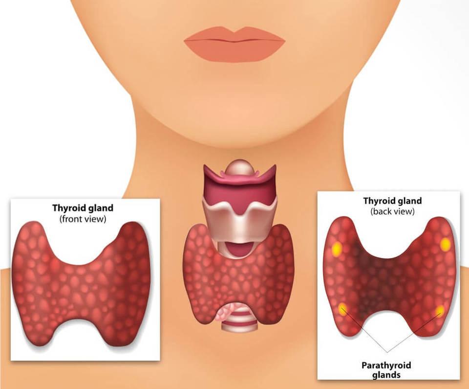 Ce iti declanseaza bolile de tiroida. Este o greseala comuna pe care o faci si tu