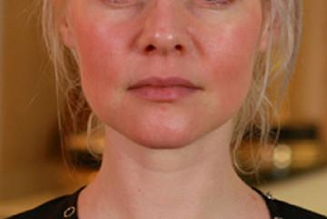 Ce trebuie sa stii despre pielea sensibila?