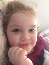 Teodora, o fetita care sufera de nev congenital gigant, are nevoie de ajutor! Boala ei e extrem de rara si pana la 8 ani are nevoie de mai multe operatii