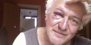 """Scriitorul Dan Alexe, batut de tigani in Bruxelles. """"Pe unul l-am muscat de fata. Tanjeau la... """""""