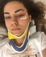 """Prima declaratie a noii soliste de la DJ Project, dupa accidentul cumplit de ieri! A vorbit de pe patul de spital: """"A fost asa cum...""""- Are gatul imobilizat si copci pe pomete"""