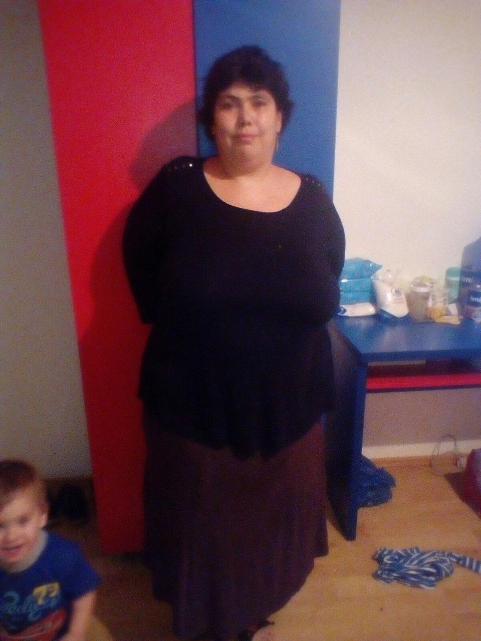 Asa arata Ioana dupa ce a slabit 15 kilograme in urma montarii unui inel gastric