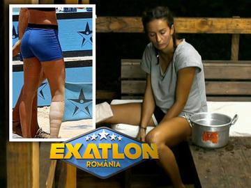 Cum arata piciorul Roxanei de la Exatlon? Cat de grava este accidentarea?