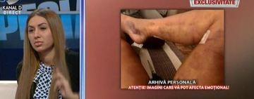 """Dupa ce Denisa Despa a fost la un pas sa moara sau sa-i fie amputat un picior, Loredana Chivu nu vrea sa mai auda de operatii estetice! """"M-am speriat ingrozitor, nu-mi mai fac nimic"""" VIDEO EXCLUSIV"""