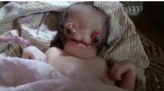 A nascut un extraterestru? O femeie a adus pe lume un bebelus cu trasaturi bizare