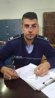 Ce i s-a intamplat acestui politist din Dolj chiar in aceasta dimineata si cum a ajuns cu nasul spart e incredibil!