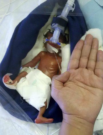 Ce s-a ales de copilul care cântărea la naştere 400 de grame! Micuţa avea organele subdezvoltate, dar a supravieţuit