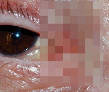 """Medicii, in stare de soc! Un tanar s-a trezit cu un vierme parazit in ochi: """"Nu vedea la 30 de centrimetri"""