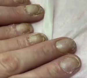 Avea unghiile intr-o stare jalnica si ii era rusine sa mai iasa afara din casa fara manusi. Unei prietene i s-a facut mila de ea si i-a promis ca o ajuta. E incredibil cum arata acum degetele ei