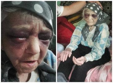 O batrana de 90 de ani din Braila a fost batuta cu salbaticie chiar de fiica ei! Bataile crunte au inceput dupa ce femeia s-a trezit proprietara pe averea mamei ei