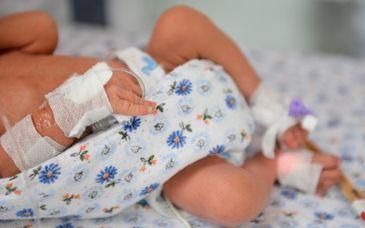 Inca un bebelus mort in Timis din cauza rujeolei