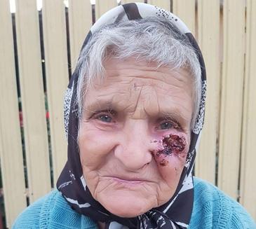"""Batrana de 89 de ani, incuiata in casa si maltratata de fiul ei. Vecinii cer disperati ajutor: """"Face viermi la rana aia de la obraz"""""""