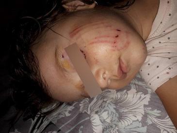 Caz cumplit la Buzau - O fetita de doi ani a fost atacata si muscata de catre un caine - Incidentul s-a petrecut intr-un parc din oras