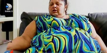 Adriana, femeia care a slabit 150 de kilograme, si-a taiat pielea in exces! Uite cum arata acum