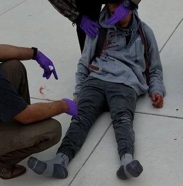 Copil cu handicap, batut in ultimul hal de colegii de scoala si lasat intr-o balta de sange