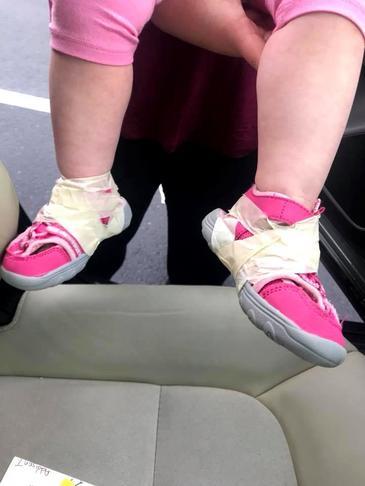 Imagini scandaloase! Ingrijitoarea unei crese i-a lipit pantofii de picioare cu scotch unei fetite de nici doi ani! Micuta s-a ales cu rani si vanatai!
