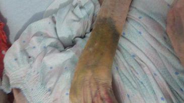Caz revoltator intr-un azil de batrani! O pacienta a fost luata la palme de infirmiera