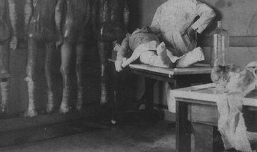 """Ramasitele """"ingerului mortii"""" au fost examinate! Ce au descoperit medicii dupa ce au deschis punga albastra in care au fost pastrate timp de 30 de ani: """"Avea pelvisul..."""""""