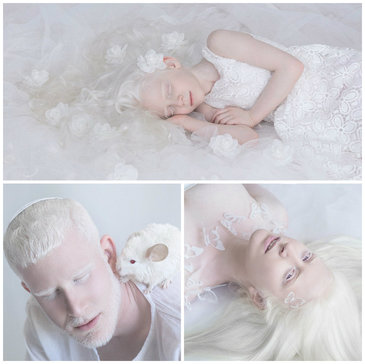 """Imagini superbe care arata frumusetea albinosilor. """"Aceasta frumusete pura pare a fi desprinsa din basme"""""""
