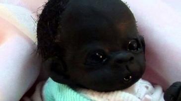 Cum arata acum cel mai negru copil din lume - A crescut si s-a transformat destul de mult