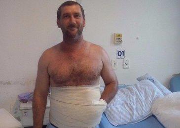 El e barbatul care are mana cusuta in abdomen! Ce s-a intamplat cu el dupa ce medicii au luat aceasta decizie surprinzatoare