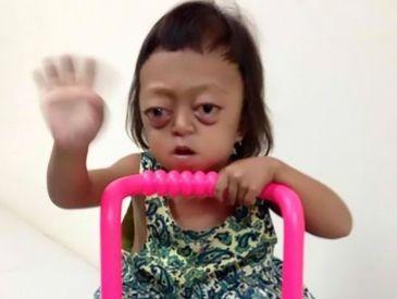 A nascut o fetita cu dizabilitati si a vandut-o, ca sa scape de ea. Ce s-a intamplat cu micuta este sfasietor
