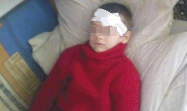 Cumplit! Si-a mutilat copilul cu fierul de calcat fiindca nu ii spune mama - Medicii din Barlad s-au ingrozit cand au vazut ranile