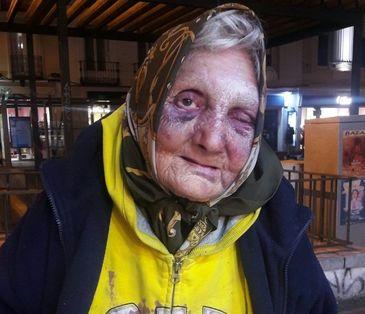 Batrana fara adapost din Romania, desfigurata de patru tineri fascisti la Madrid