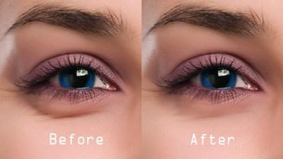 VIDEO! De ce sa iti aplici bicarbonat de sodiu sub ochi! Incearca remediul asta WOW!