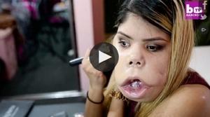VIDEO OMG! Un exemplu de urmat- tumora de pe fata nu o opreste sa faca ce-i place