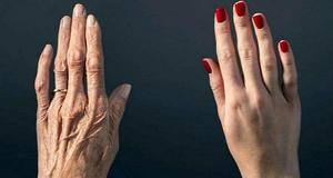 Reţeta uimitoare care îţi transformă mâinile - Vor părea cu 10 ani mai tinere