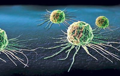 Celule canceroase, transformate in celule ale sistemului imunitar