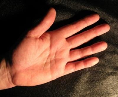 Trei boli care pot fi citite in palma! Vezi de ce afectiune suferi