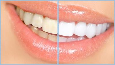 Cum sa iti albesti dintii si sa scapi usor de gingivita, in mod natural