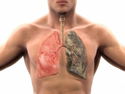 Esti fumator? Reteta care iti curata eficient plamanii