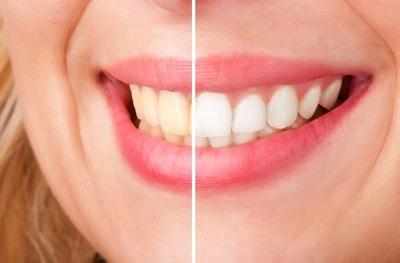 Doua ingrediente combinate iti albesc dintii pe loc