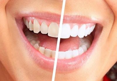 Albeste-ti dintii natural, in doar 3 minute, la tine acasa