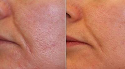 Micsoreaza porii dilatati cu aceste 3 tratamente naturale
