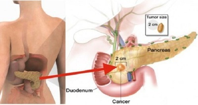 Doar doua bucati din acest aliment iti cresc substantial riscul de a face cancer!