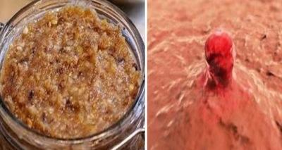 A consumat zilnic un preparat din 3 ingrediente si s-a vindecat de cancer ovarian