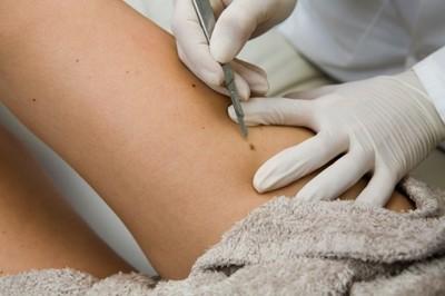 Cum poti depista cancerul de piele inainte ca acesta sa apara